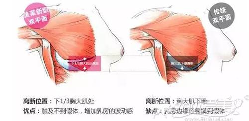 栗勇教授设计的假体丰胸植入切口