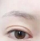 """我在十堰安琪儿""""纹眉+纹眼线""""的全程记录术前"""