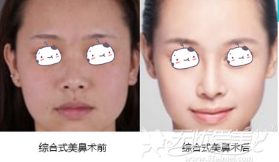 珠海陈科鼻综合手术案例