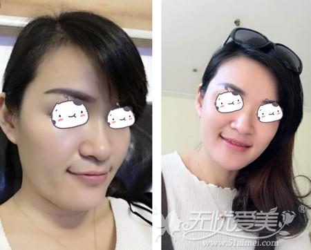 刘燕燕去福州海峡做隆鼻手术前照片