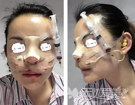 刘燕燕去福州海峡做隆鼻手术术后第一天