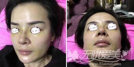刘燕燕去福州海峡做隆鼻手术术后第4天
