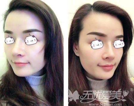 刘燕燕去福州海峡做隆鼻手术术后第24天