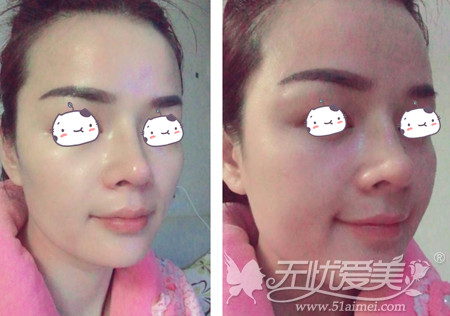 刘燕燕去福州海峡做隆鼻手术术后第10天