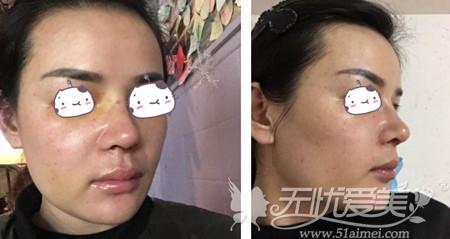 刘燕燕去福州海峡做隆鼻手术术后第6天