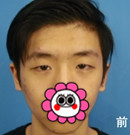 【案例】在福州海峡做双眼皮手术+面部微调术后恢复全过程