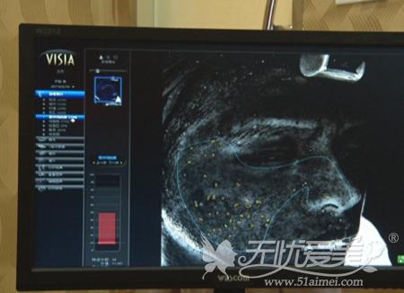 帅哥在福州海峡做皮肤微调术前检测