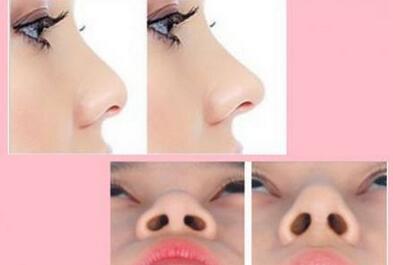 北京美联臣硅胶假体隆鼻整形对比图