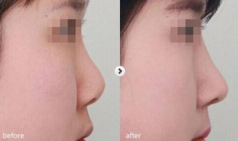 北京美莱注射隆鼻整形前后对比图