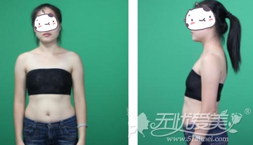 瑶瑶在福州海峡做沸腾沟丰胸术前照片