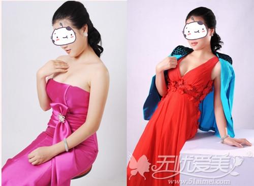 瑶瑶在福州海峡做沸腾沟丰胸手术3个月