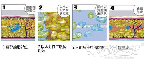水动力吸脂原理
