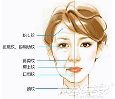 面部常见的的皱纹种类