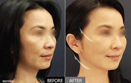玻尿酸注射全脸年轻化对比案例