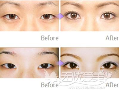 济宁韩美双眼皮手术案例