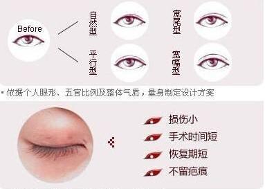菏泽华美韩式双眼皮