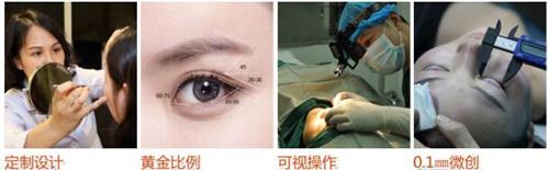 菏泽华美双眼皮手术步骤
