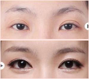 菏泽华美开眼角和双眼皮案例