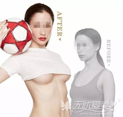 内窥镜隆胸手术案例