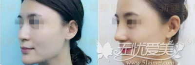 新疆华美鼻综合手术案例