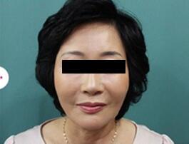 3D液态拉皮术后第11天照片