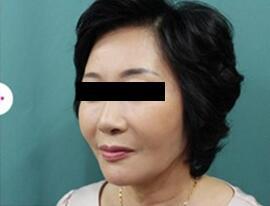 3D液态拉皮术后第18天照片