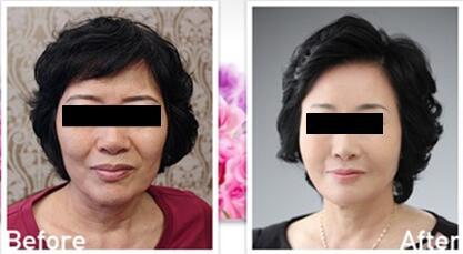 3D液态拉皮术后一个月照片对比
