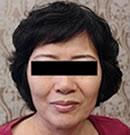 北京玉之光宋丽秋院长,用3D液态拉皮让我面部重回年轻态!