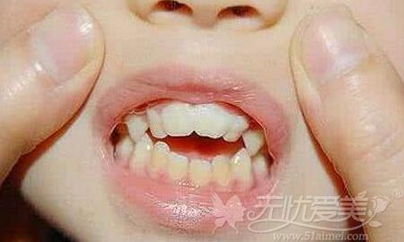 大连牙齿畸形矫正