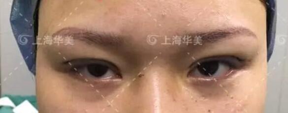 在上海华美做双眼皮手术刚结束哦,没有很肿