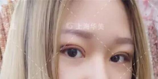 在上海华美做双眼皮术后4-9天是一个快速消肿的阶段