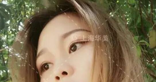 在上海华美做双眼皮术后的31-180天为基本形态呈现稳定