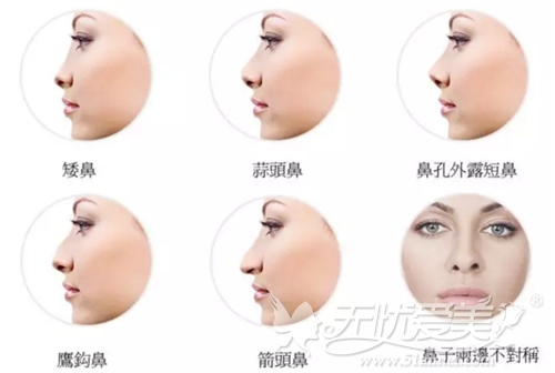 河南一科鼻整形可以改善的鼻型