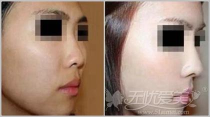 任天平做鼻综合手术的效果