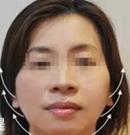 昆明大华面部线雕提升案例 袁进东院长让她40分钟重返20岁