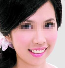 在北京玉之光做成人隐形牙齿正畸让我摆脱25年的梦魇