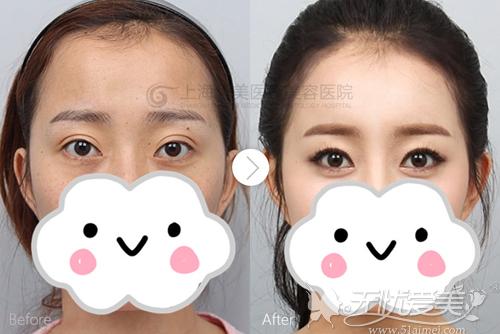 上海华美双眼皮过宽修复案例
