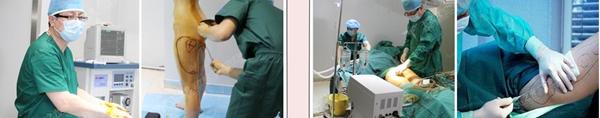 瑶瑶在北京玉之光做自体脂肪丰胸手术