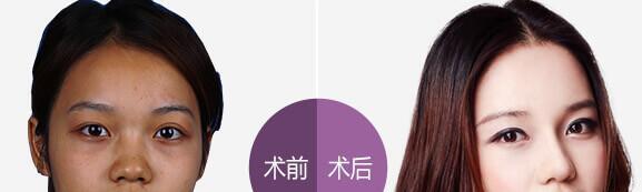 上海伊莱美医院隆鼻效果对比案例图