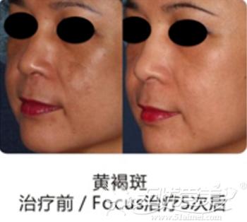 武汉富康整形美容医院激光祛斑案例