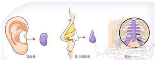 自体软骨隆鼻截取位置