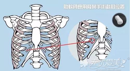 肋软骨隆鼻截取位置