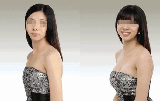 通过隆胸手术拥有丰满的乳房