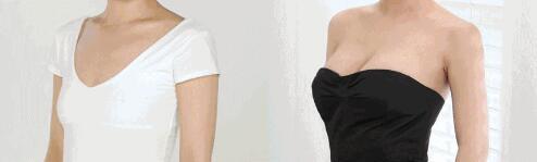 刘道功胸部整形案例对比