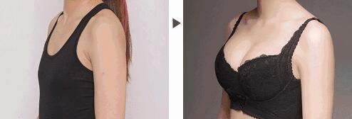 刘道功胸部整形案例对比图