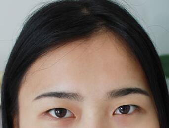 湖南长沙美研精雕双眼皮整形前照片
