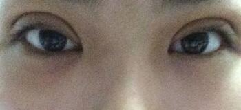 湖南长沙美研做精雕双眼皮整形后第一天照片