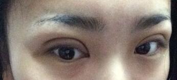 湖南长沙美研做精雕双眼皮整形后第三天照片