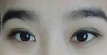 湖南长沙美研精雕双眼皮整形案例,睁眼闭眼无疤痕双眼皮!