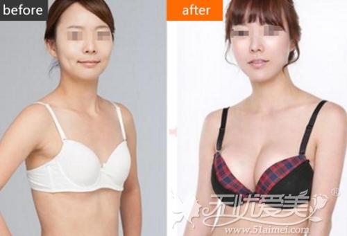 南京康美假体隆胸案例